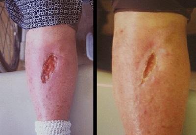 blessure de la peau soignée au miel, avant et après 42 jours